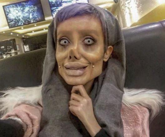 Jej marzeniem było być jak Angelina Jolie, a teraz STRASZY swoim wyglądem