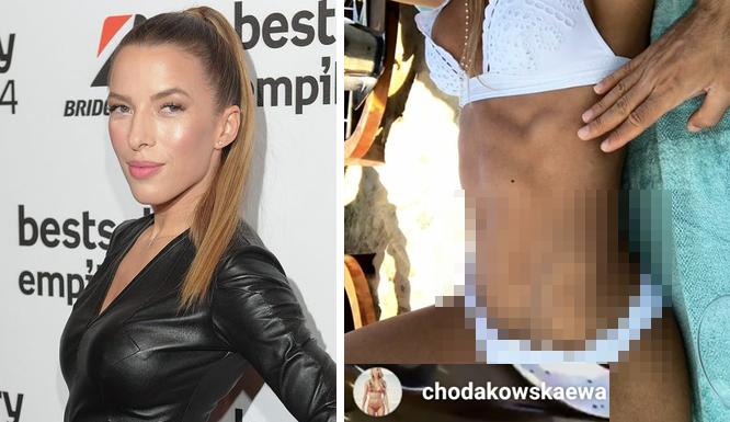 Ewa Chodakowska pokazała ciało w bikini i…. bliznę (FOTO)