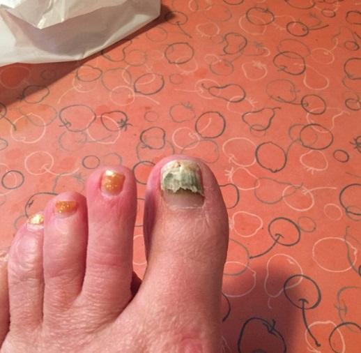 Z takimi paznokciami nie odsłaniaj stóp. Faceci wzdrygają się na sam widok